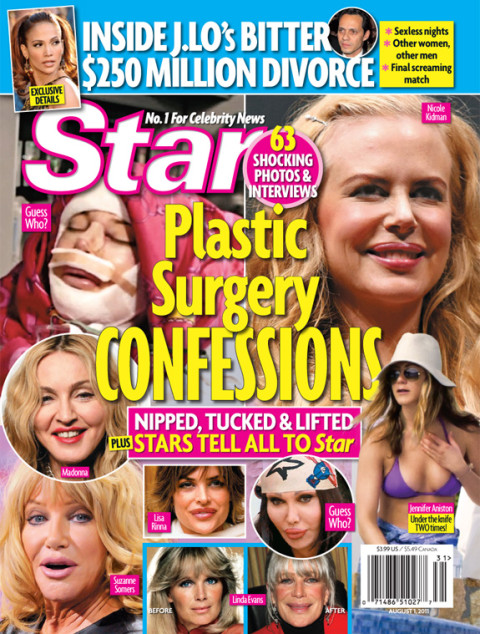 Star Magazine - Celebrity Plastic Surgery Confessions