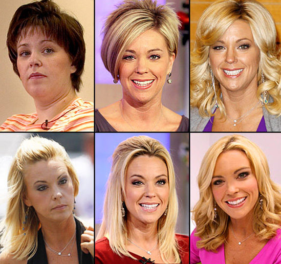 The evolution of Kate Gosselin's face!