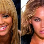 Beyonc Nose Job