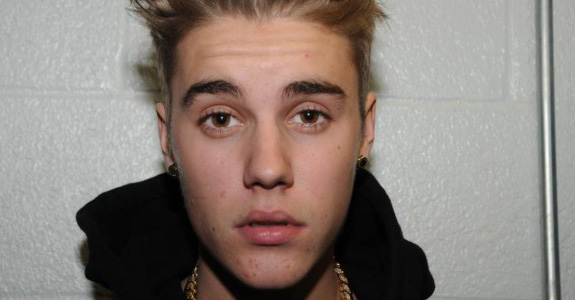 Justin Bieber: Blaming his drunk walk on a broken foot!